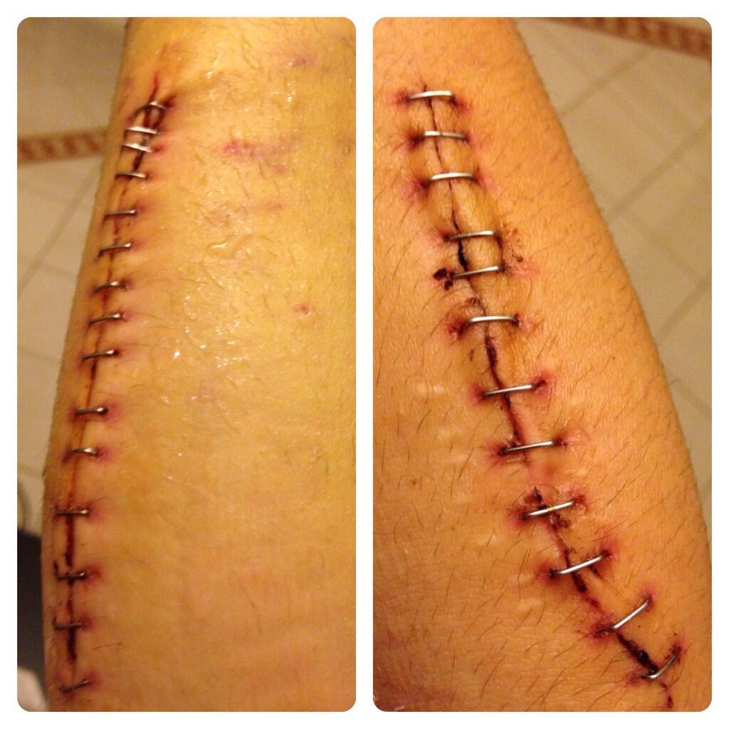 Шрам Дани Педросы на предплечье после операции