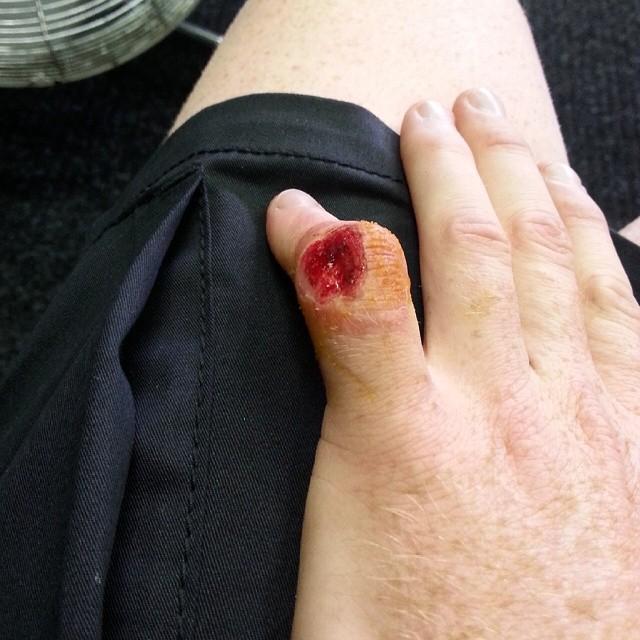 Травмированный палец Брэдли Смита