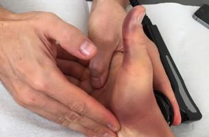Ники Хэйден сломал палец на правой руке