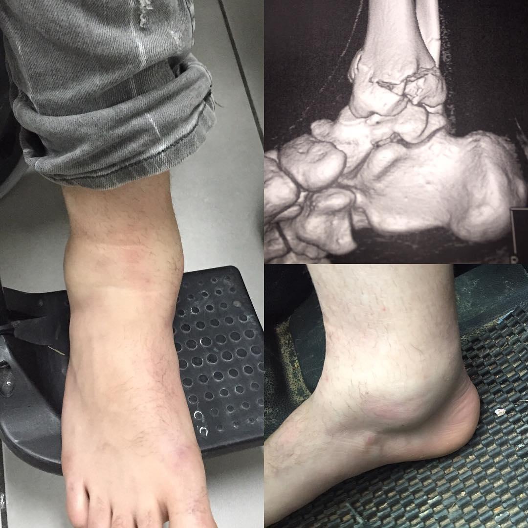 Травма Джека Миллера