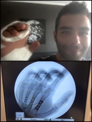 Прооперированная рука Данило Петруччи