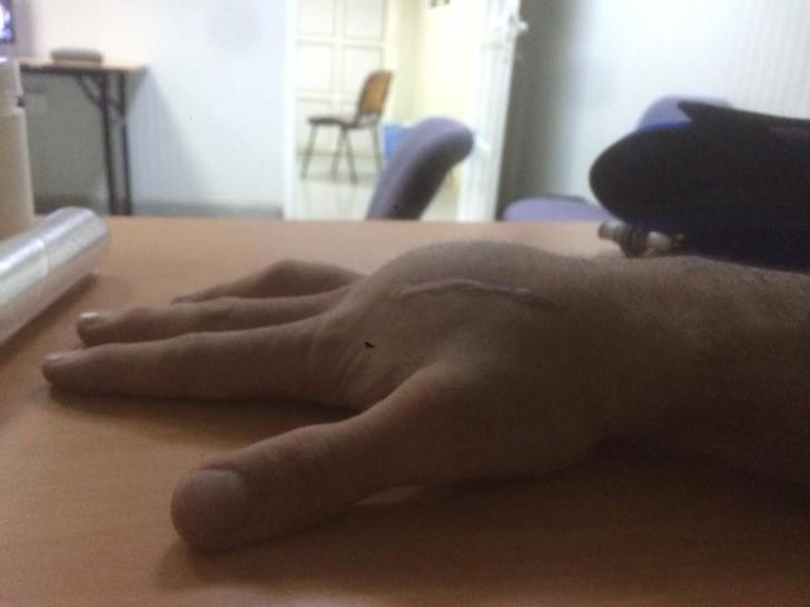 Опухшая рука Данило Петруччи